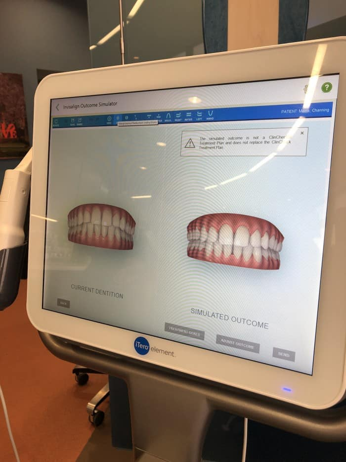 Invisalign with SmileRefresh 1st appointment